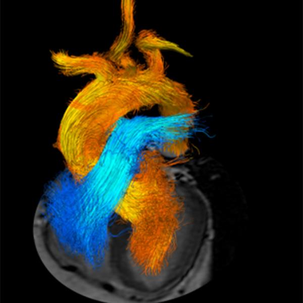 Herz 4D Flussmessungen